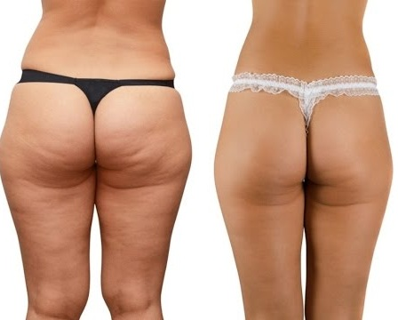 Cellulite Gone works