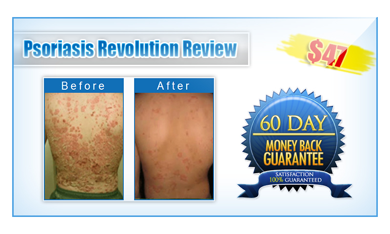 Psoriasis Revolutions reviews